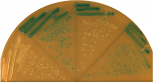 Bacterial colonies turn blue if they contain a gene that degrades specific sugars.