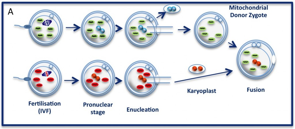 The pronuclear transfer method: Embryos are shown with mitochondria carrying normal (green) or mutant (red) mtDNA. As the embryos begin to develop, pronuclei become visible. Pronuclei from the normal donor embryo are removed (blue, top panel 'enucleation') and are replaced with the nuclear  DNA from the patients (red, karyoplast). The resultant embryo carries nuclear DNA from the patients and mtDNA from the donor (mitochondrial donor zygote).